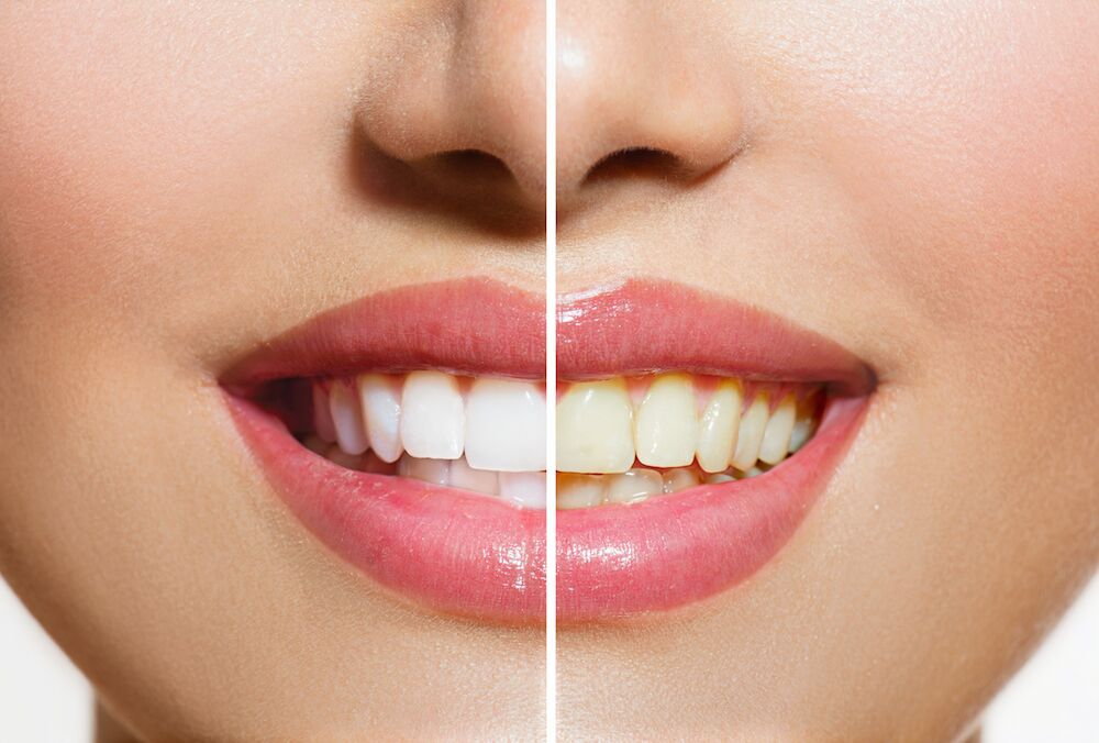 FREDERICK MD DENTIST | STAINED TEETH